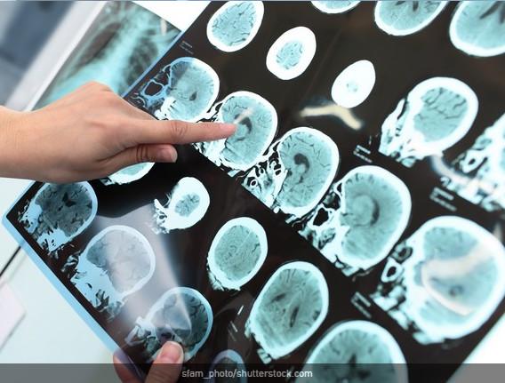 Epilepsie : besoin urgent d'un plan national
