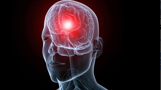 Un hackathon pour l'épilepsie à la fois à Bruxelles et à Atlanta du 24 au 26 avril 2015
