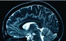Quelles sont les causes de l'épilepsie ?