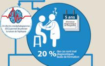 L'épilepsie touche 500 000 personnes en France